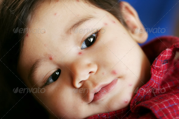 PhotoDune Baby boy with chicken pox 3675675