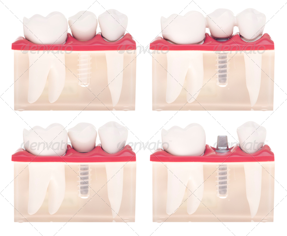 PhotoDune Implant dental model 470674