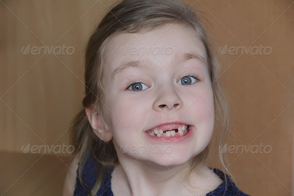 Beautiful child without front teeth - Stock Photo - Images