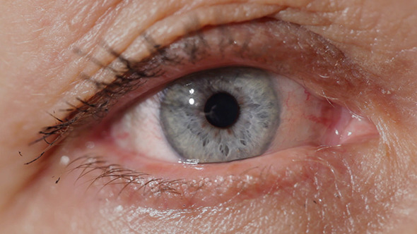 Blue Eyes Of A Middle-Aged Woman