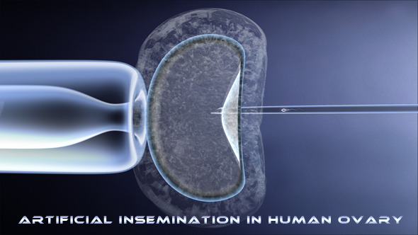 VideoHive Fertilization by Micro-Injection 4813633