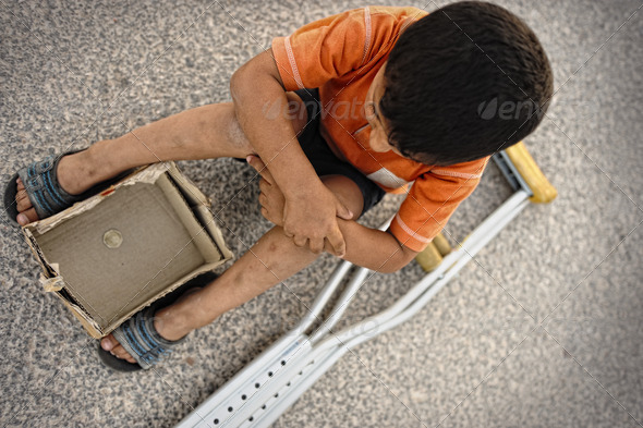 Hungry kid begging on the street with a crutches beside - Stock Photo - Images