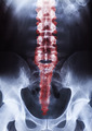 human body on xray - PhotoDune Item for Sale