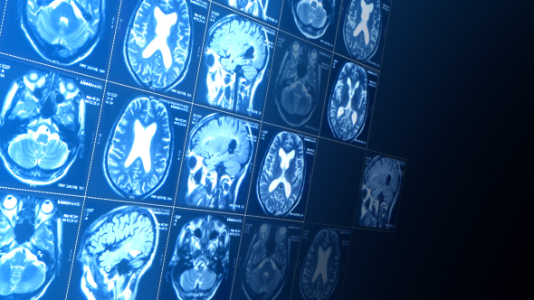VideoHive Magnetic Resonance Imaging 5526804