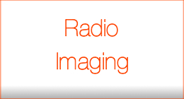 Radio Imaging