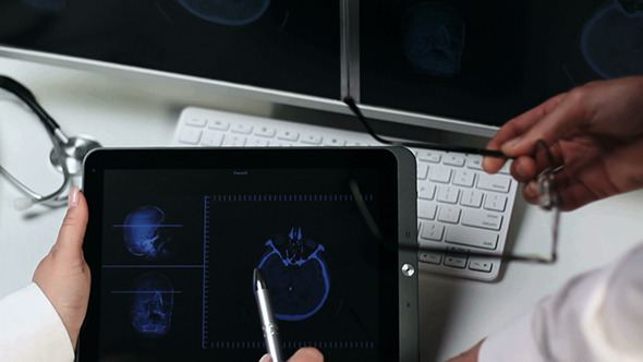 VideoHive Two Doctors Examin a CAT Scan 6124342