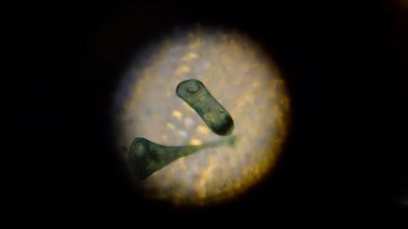 Stentor Polymorphus 3