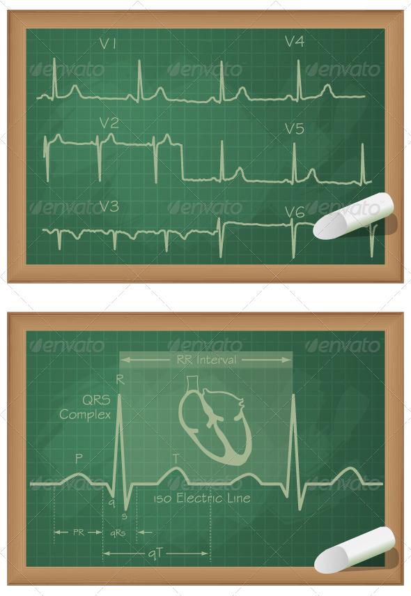 GraphicRiver Understanding Heart ECG Board Illustration 6303915