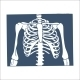Thorax X-Ray Picture. - GraphicRiver Item for Sale