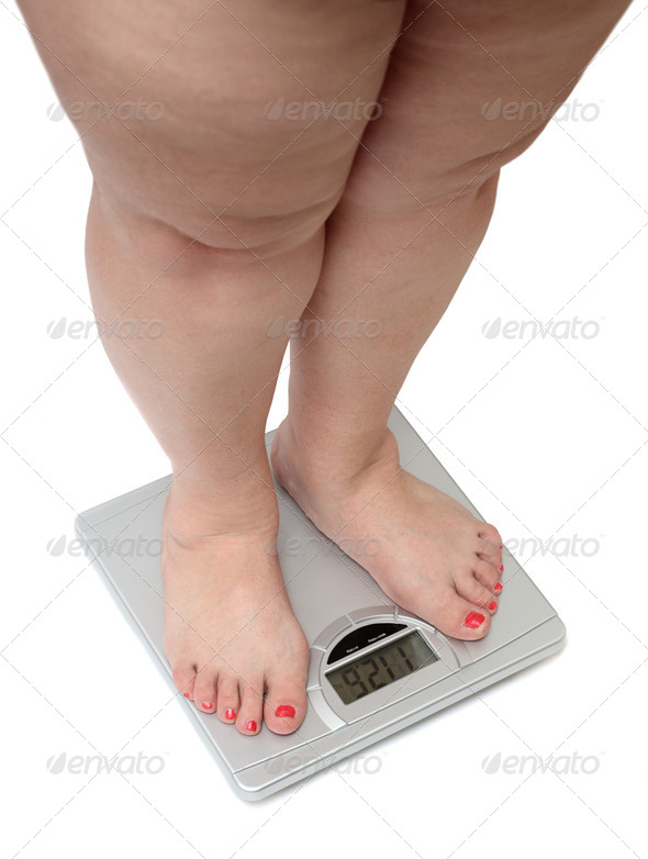 Stock Photo - PhotoDune women legs with overweight 776660