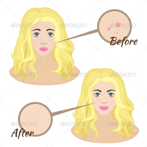 GraphicRiver Girl Face with Acne 8295152